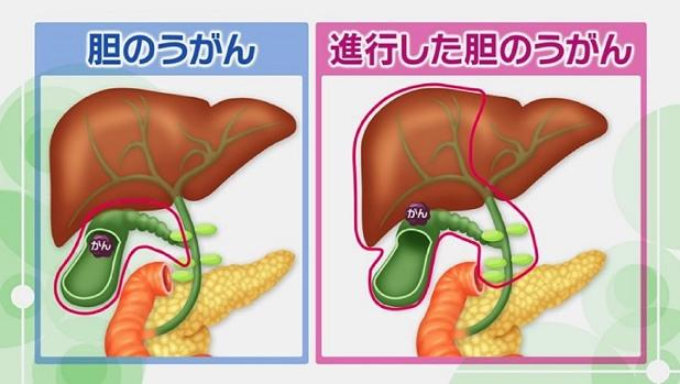 ん 原因 が 胆嚢